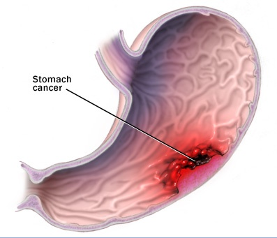 gastric cancer research paper