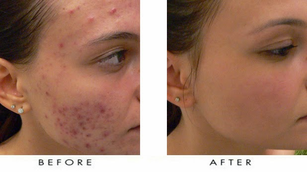 How Ride Seasonally Acne From Face 100 Natural Home Tips