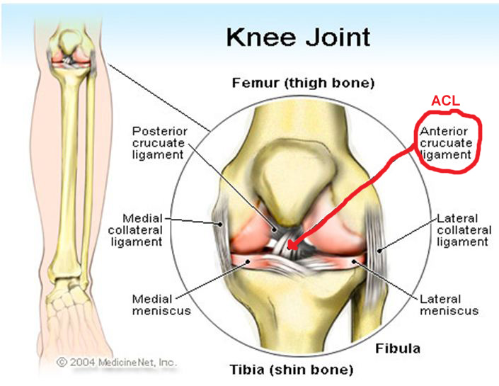 twisted knee injury - acl reconstruction surgery diagram of torn meniscus diagram of torn acl #2