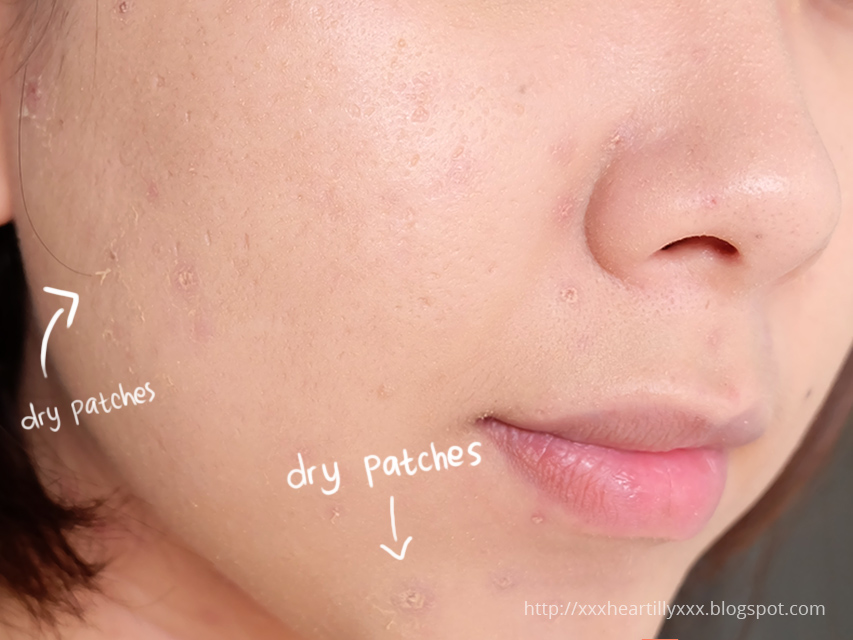 skin too dry