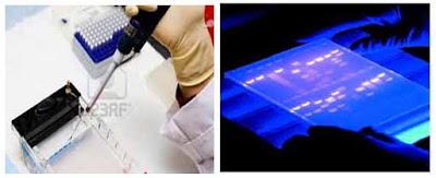 Hình 2: Điện di trên gel agarose và nhuộm bằng ethidium bromide để phát hiện DNA nhân bản bằng PCR
