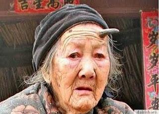 Aneh ! Nenek Ini Mempunyai Tanduk Di Dahinya