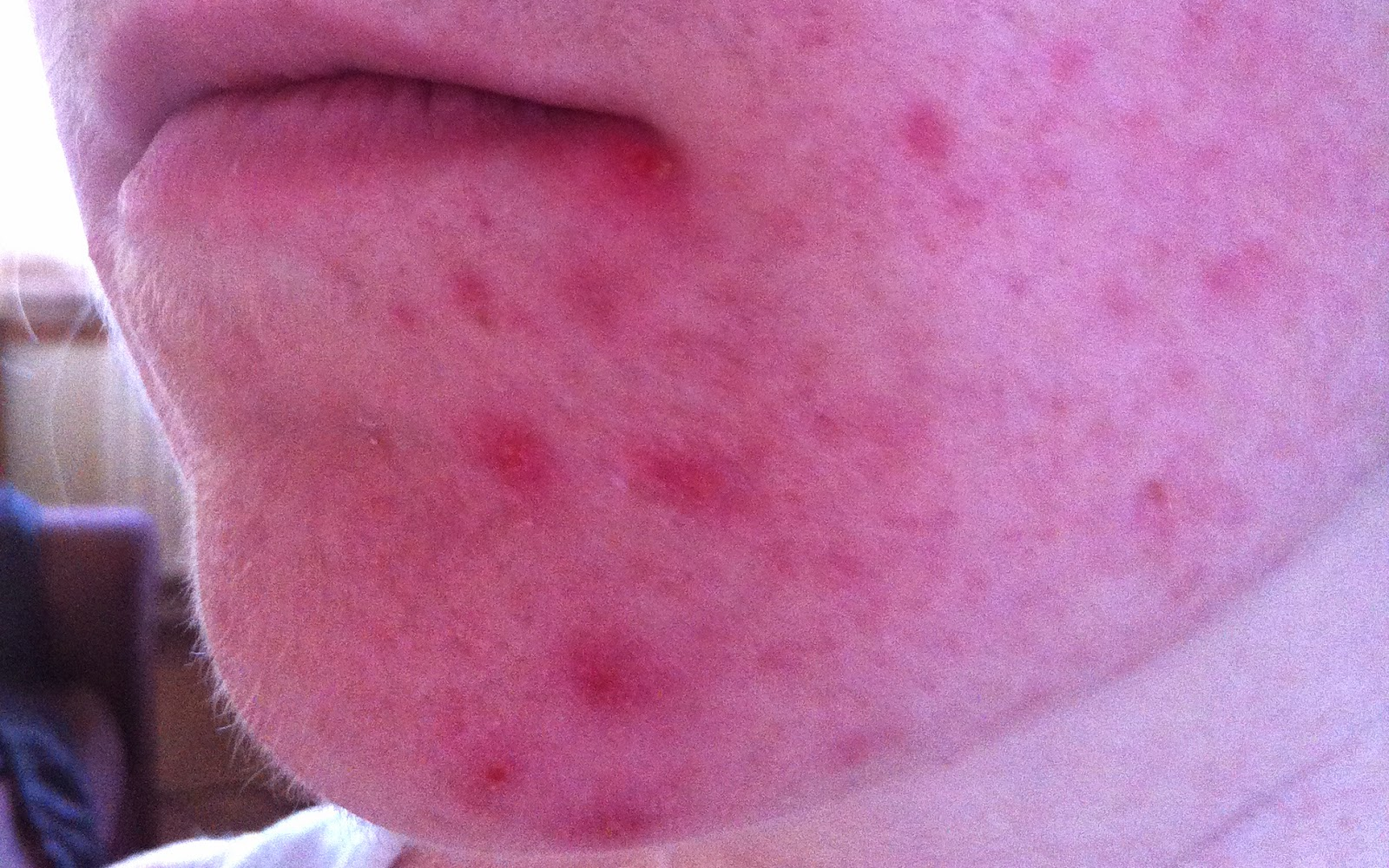 Roaccutane Treatment for Acne/Spots Review