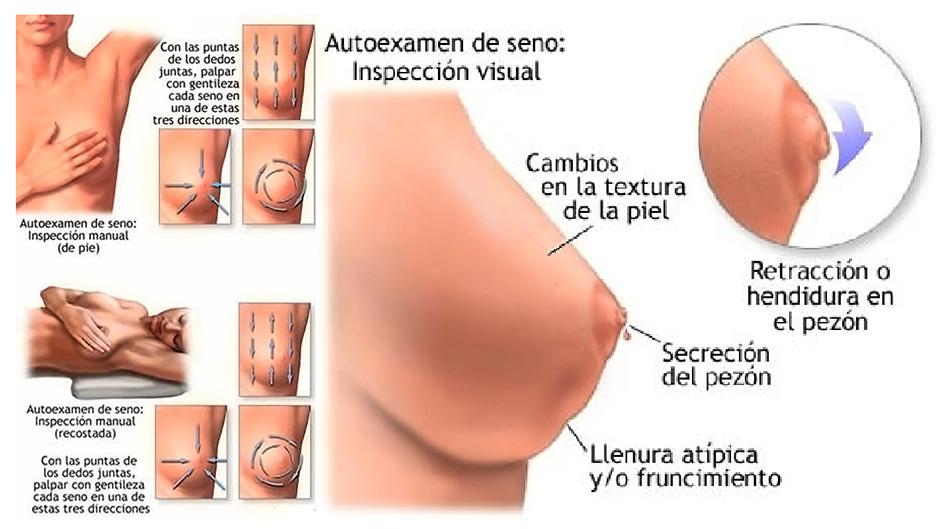 Cambio de seno en el embarazo temprano