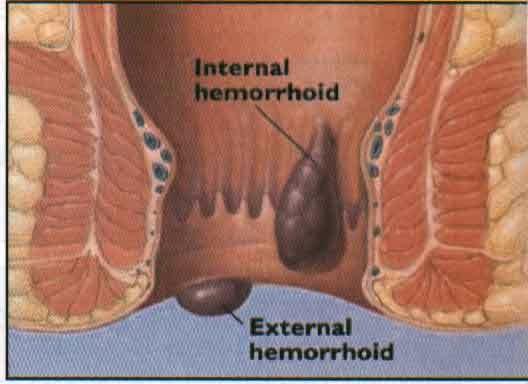 obat penyakit wasir herbal paling ampuh, cara mengobati wasir dengan obat alami, nama obat wasir untuk ibu hamil
