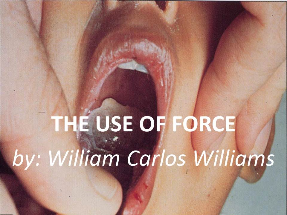 the use of force by william carlos williams essay