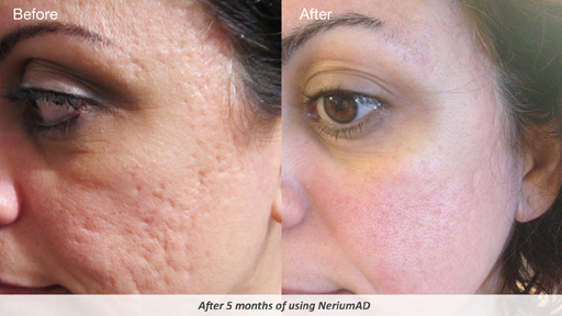 Nerium face cream before and after pictures ADD vs ADHD : What's the Difference Between ADD ADHD