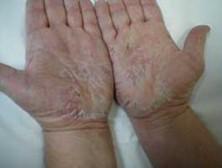 Kelainan tangan Dermatitis atopik