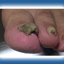 La publicidad de los preparados para el tratamiento del hongo de las uñas