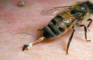 Terapi Lebah