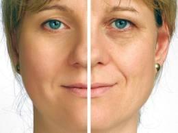 tips cara mengencangkan kulit wajah
