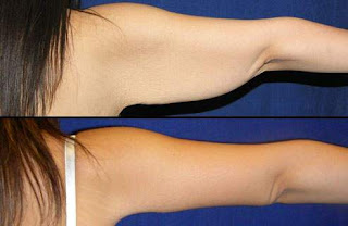 cara mengecilkan lengan