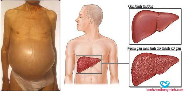 Hậu quả của bệnh Gan