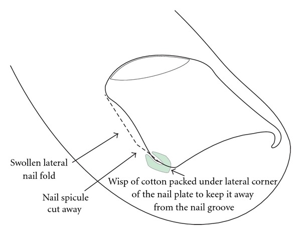 La lucha contra el hongo de las uñas en los pies por el vinagre