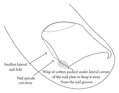 Como sanar el hongo de la uña a gv