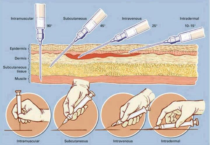 tipos de agujas para inyectar esteroides