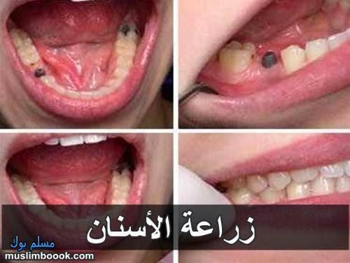 فؤائد زراعة الأسنان