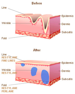 faktor penggunaan steroid