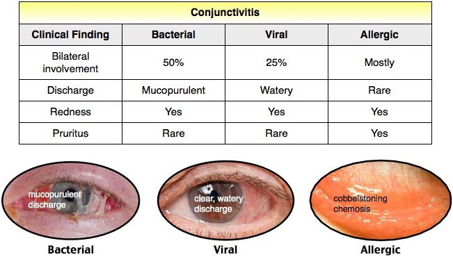 conjungtivitis ~ all about your health, Skeleton