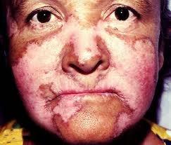 Pengobatan Tradisional Penyakit Lupus