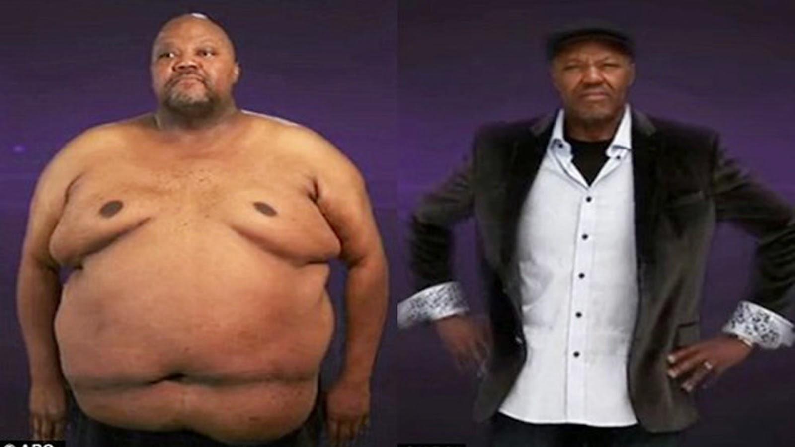 tellement vrai obesité