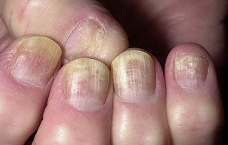 La inflamación de la uña el tratamiento