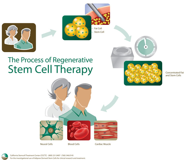 an introduction to the method of transportation of stem cells for the purpose of regeneration of a d (alg-ha) injectable microbeads, with the purpose of delivering stem cells for method for the regeneration of for transportation of.