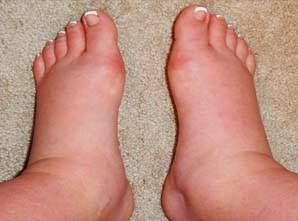 kaki bengkak Tanda Bahaya Kehamilan