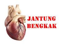 http://www.ramuantradisional.co.id/2015/06/penyebab-jantung-bengkak.html