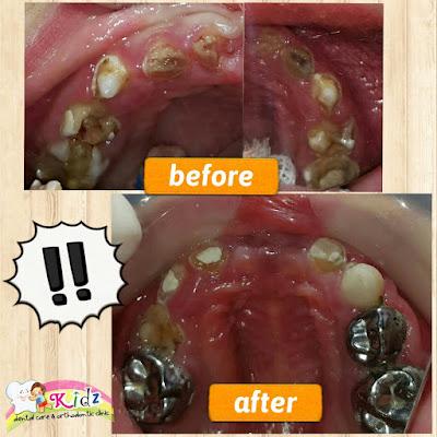 Keadaan Gigi sebelum dan sesudah perawatan