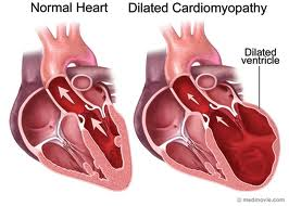 Treatment cardiomyopathy