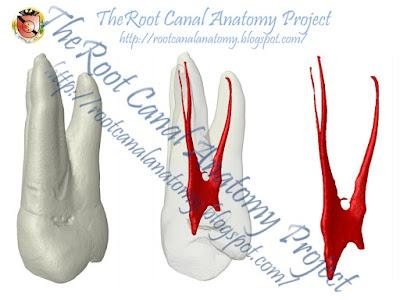 Maxillary first premolar anatomy