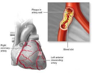 causes acute coronary syndromes applying koch's postulates
