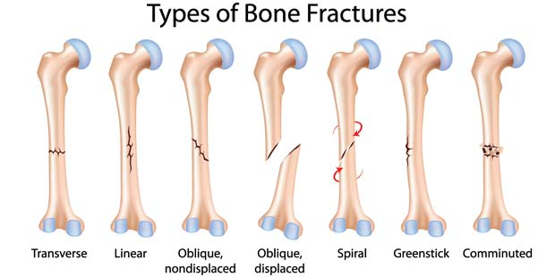 Bone Fractures: Types, Symptoms, Prevention and Treatments-3.bp.blogspot.com