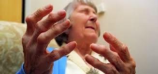Penyakit Gout Pada Lansia