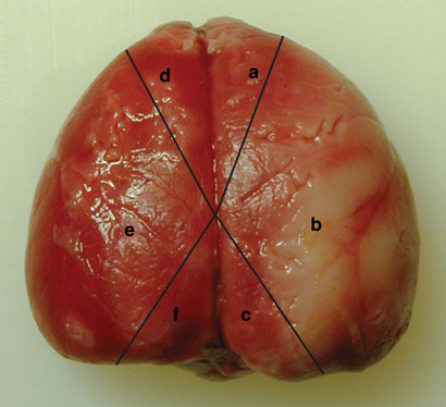 Brain Edema4