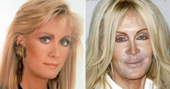 celebrity plastic surgery addicts essay