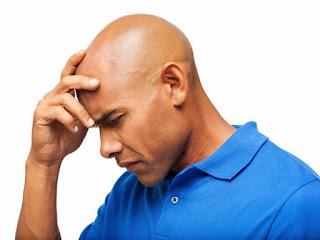 Heilen Sie Ihre Kahlheit & Alopezie the Natural Way (chinesische Kräuter)