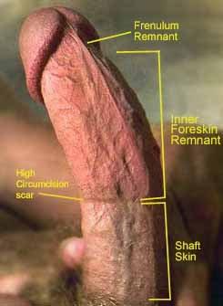 Scar on penis circumcision