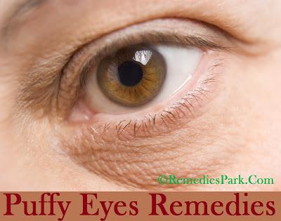 Puffy Eyes Remedies