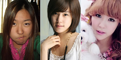 Foto masa lalu Tiffany tampak berbeda dengan wajahnya saat awal debut ...