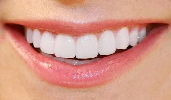 Cara Ampuh Menghilangkan Karang Gigi Mengenal Hidup Sehat