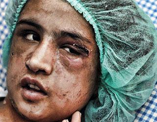 Mujeres y niñas de Afganistan