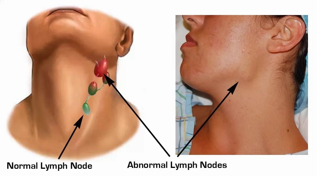 Adapun Gejala Kanker Kelenjar Getah Bening adalah terjadinya    Enlarged Lymph Nodes In Neck