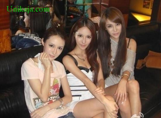 3 wanita mirip setelah operasi plastik