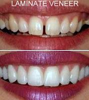 lamina laminate lamine diş estetik diş