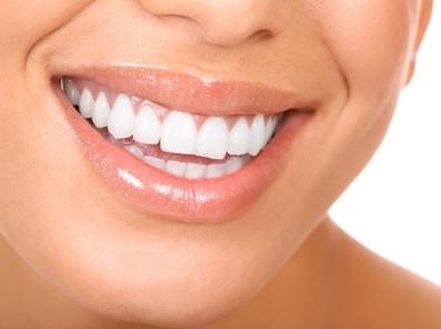 Elma Sirkesi Dişleri Beyazlatırmı-Elma Sirkesiyle Diş Beyazlatma