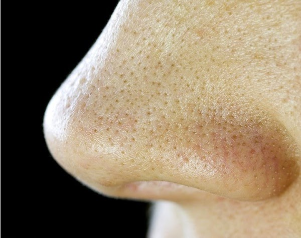 Permanent Solution For Blackheads On The Face With Ingredients Which Are Every Day In Front Of You