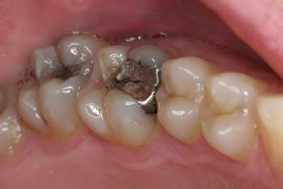 اضرار حشوة الاسنان على صحتكم