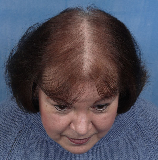 Can Dandruff Cause Hair Loss Can Dandruff Cause Hair Loss new picture